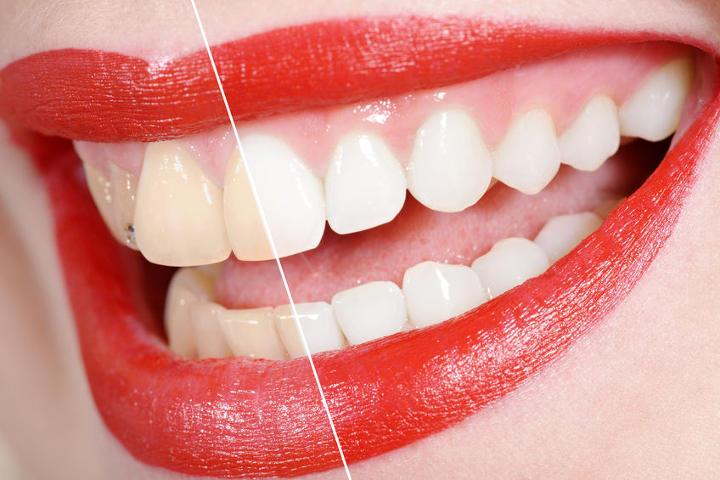 Bleaching beim Zahnarzt in Leipzig - Vorher-Nachher-Bild